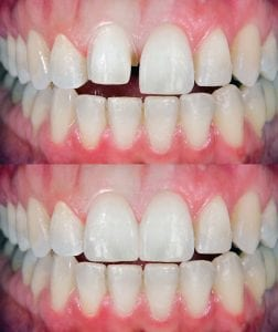 Veneers can quickly make your teeth whiter