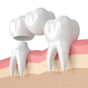 crowns & bridges are long-lasting solutions to major dental challenges