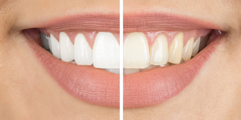 How to Whiten Teeth in Walkertown, North Carolina