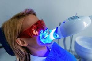 Professional Teeth Whitening vs. At-Home Teeth Whitening